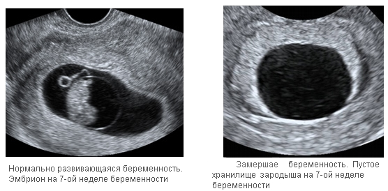 Срок беременности с по узи