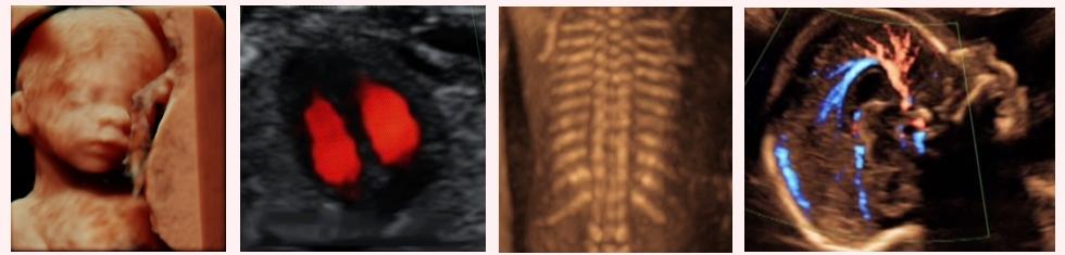 Fetal anatomy scan
